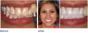 Teeth-Whitening-After-Tischler-Patch-Dental