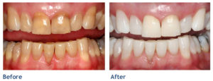 Teeth-Whitenting-Before-Tischler-Patch-Dental