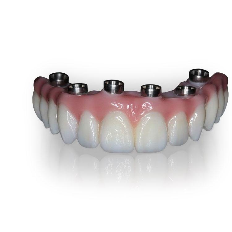 teeth_tomorrow_prettau_bridge-tischler-implant-dentistry
